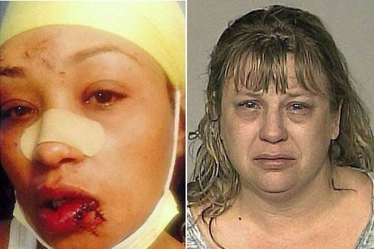 Asma Mohammed Jama after she was assaulted by Burchard Risch (right) in a restaurant in the United States for speaking Swahili. PHOTOS   COURTESY